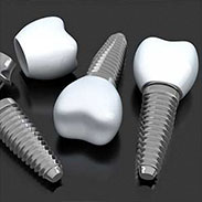 Dental Implants in Hoboken