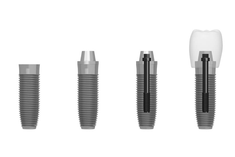 DENTAL IMPLANT PROCEDURE: A STEP BY STEP GUIDE