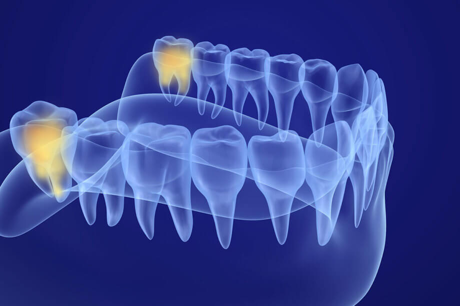 Are Your Wisdom Teeth Causing You Pain?